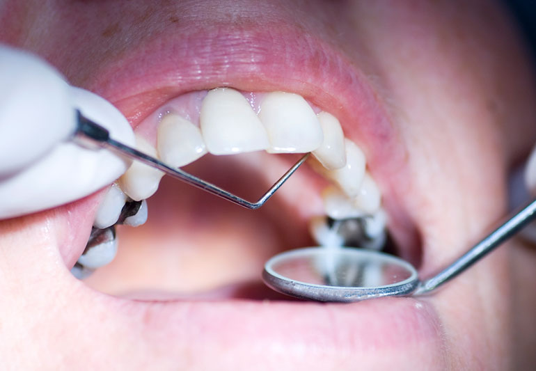 Should You Worry About Mercury in Your Silver Dental Fillings? – Health Essentials from Cleveland Clinic