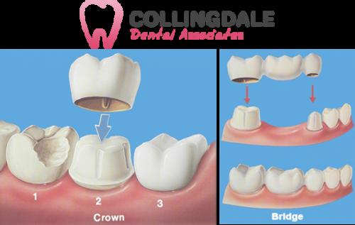 Collingdale PA Dental Crowns Bridges Expert Cosmetic