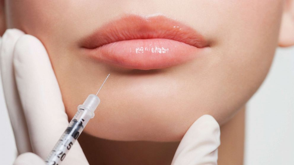 Botox people having younger following a 12 months of Zoom conferences, physicians say