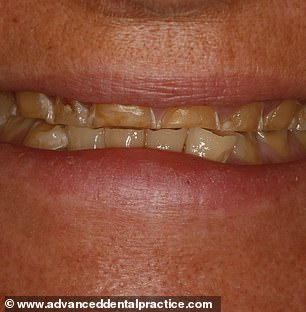 Can YOU guess which Christmas party drinks have caused these tooth fillings?